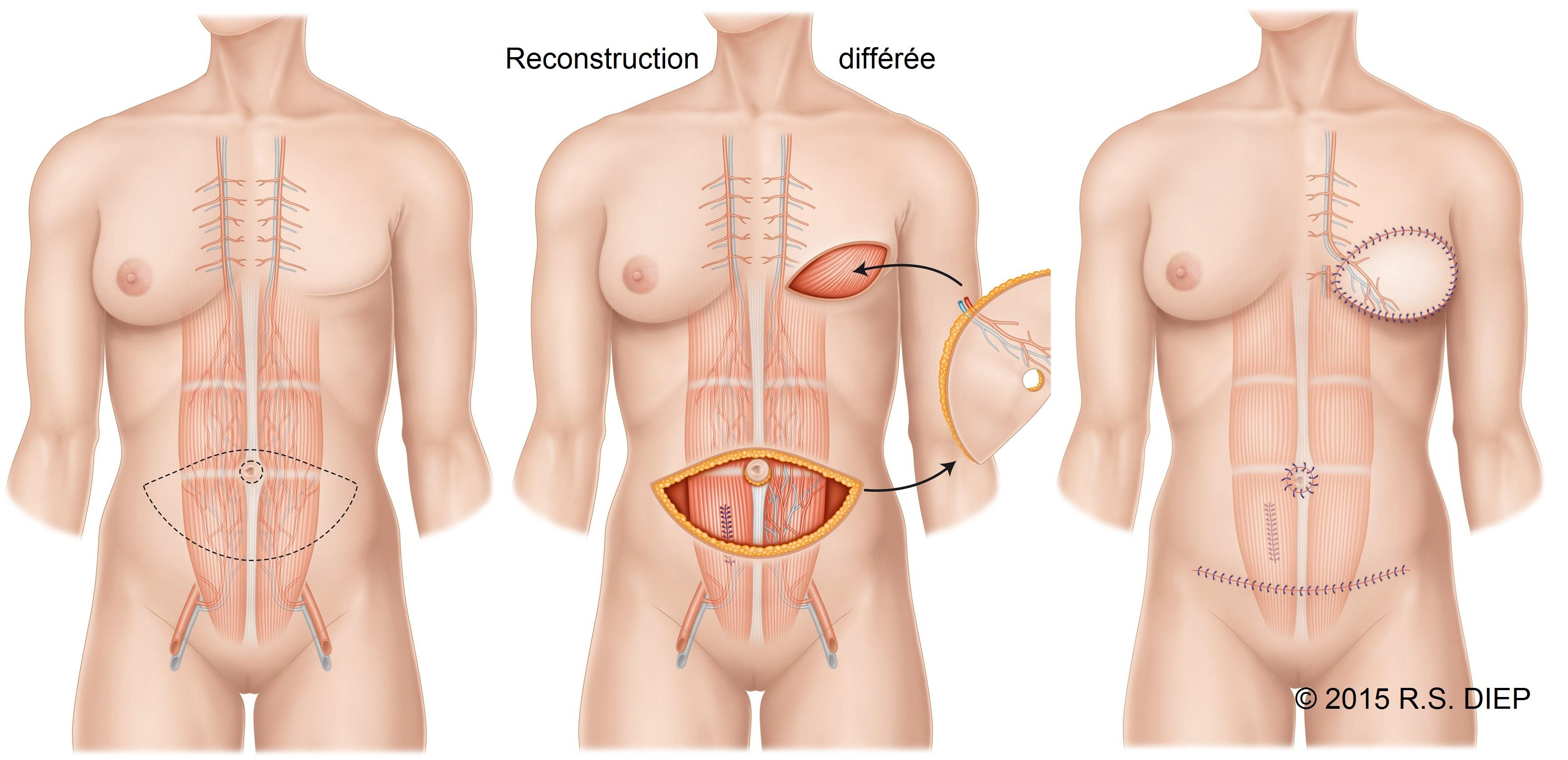 Reconstruction mammaire par lambeau de Diep